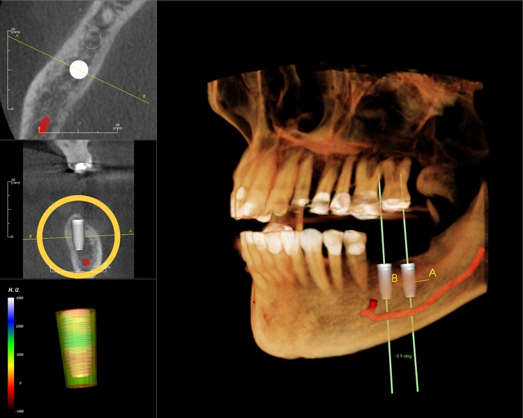 X-ray of teeth with Dental Implants